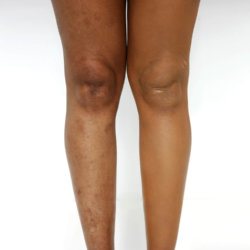 How To Cover Up Leg Veins Scars And